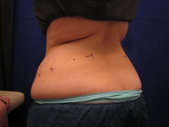 CoolSculpting before 325880