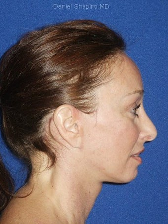 Facelift, Endoscopic Browlift, Upper and Lower Blepharoplasty after 248889