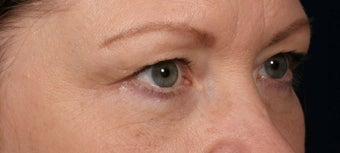 Eyelid surgery after 140085