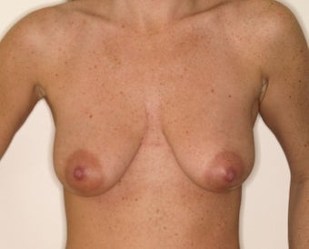 Augmentation with mastopexy before 331363