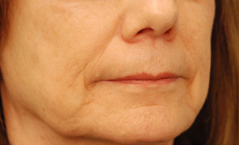 Injectable Filler before 301198