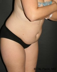 Abdominoplasty 566579
