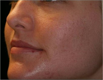Fraxel - Acne Scarring after 652393