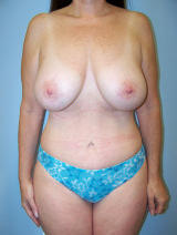 Tummy Tuck Surgery (Abdominoplasty) with Breast Augmentation after 121179