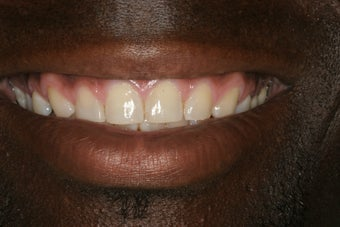 Porcelain Veneers before 213078