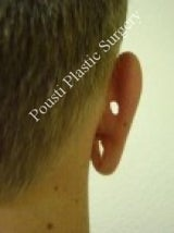 Earlobe Repair Surgery 612298