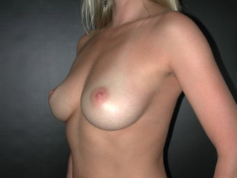 Breast Augmentation before 110079