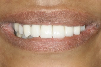 Full Mouth Restoration  after 389308