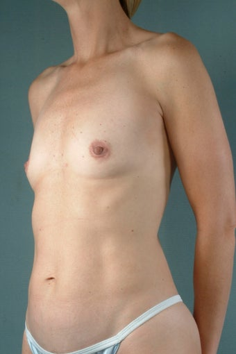 Breast Augmentation  before 240336