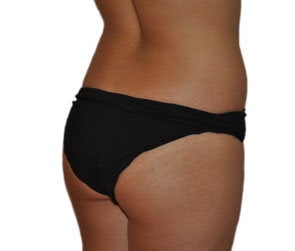 Butt Augmentation (Implants) 550251