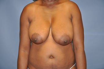 Breast Lift before 515274