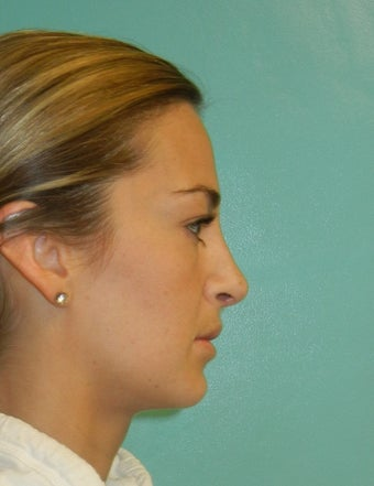 Rhinoplasty- Nose job after 392576