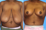 Breast Reduction before 217808