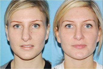Rhinoplasty before 388996