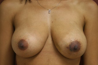 Left Breast Reconstruction before 302941