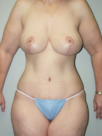 Belt Lipectomy and Breast Lift after 379775