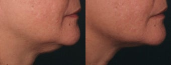 Ulthera Laser Skin Tightening before 346269