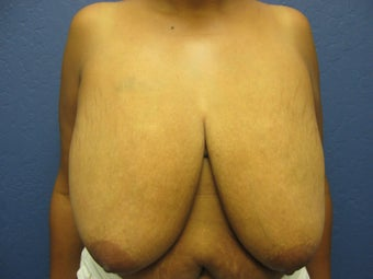 Breast Reduction before 291348
