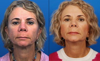 Ultherapy before 435690