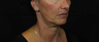 Laser Rhytidectomy (Facelift) before 222726