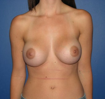 Breast Augmentation after 575297