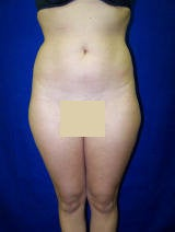 Liposuction of the abdomen, flanks and lateral thighs before 130049