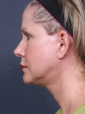 Neck Lift after 384956
