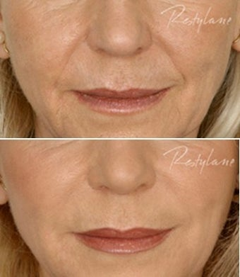Restylane Nasolabial Folds Before After before 6286