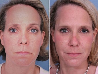 Sculptra filler in Cheeks and Temples before 242561