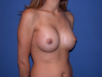 Before and After Breast Augmentation after 56186