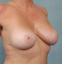 Breast Augmentation 479480