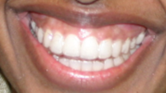 Invisalign before and afters after 151758
