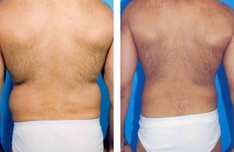 Liposuction before 636266