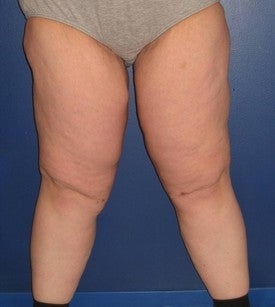 Thigh Lift (Thighplasty) after 97588