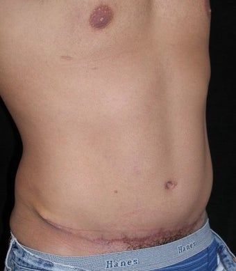 Male tummy Tuck, Flank Liposuction 578199