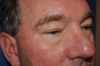 Blepharoplasty (lower eyelid surgery) before 279287