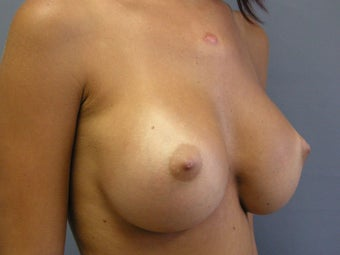 Breast Augmentation 510237