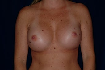 Breast Augmentation after 336407