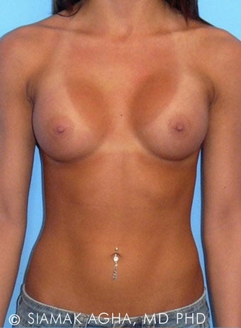 Breast Augmentation after 177441