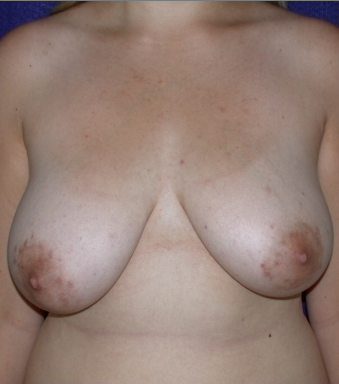 Breast Reduction before 213159