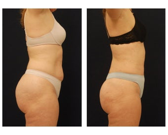 Liposuction before 286732