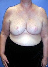 Breast Reduction Surgery after 122992