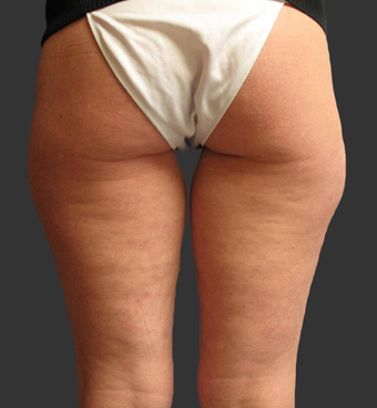 Exilis before 423768