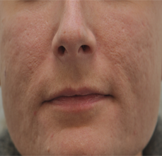 Acne Scarring before 426028