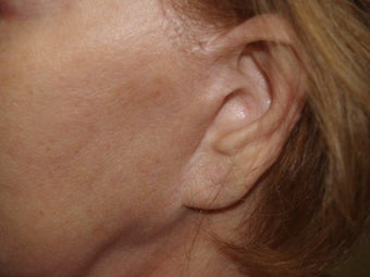 Scar and Earlobe Repair before 333694