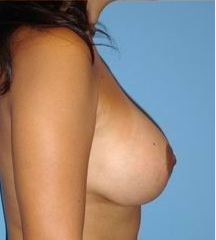 Breast Augmentation with full lift 146445