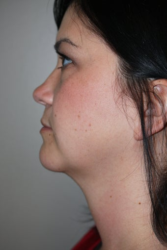 SmartLipo to the neck after 526873