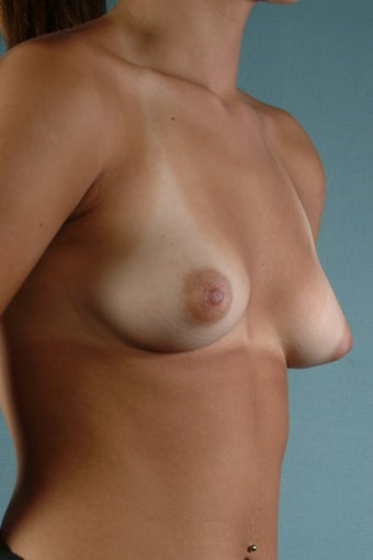 Breast Augmentation  before 240353