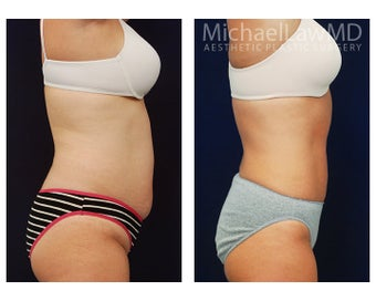Liposuction 495015