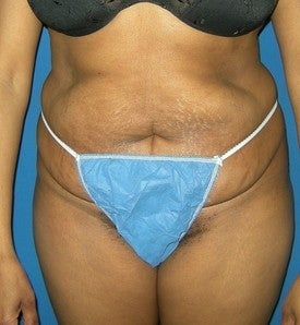 Abdominoplasty before 381846